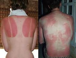 UV védőruha